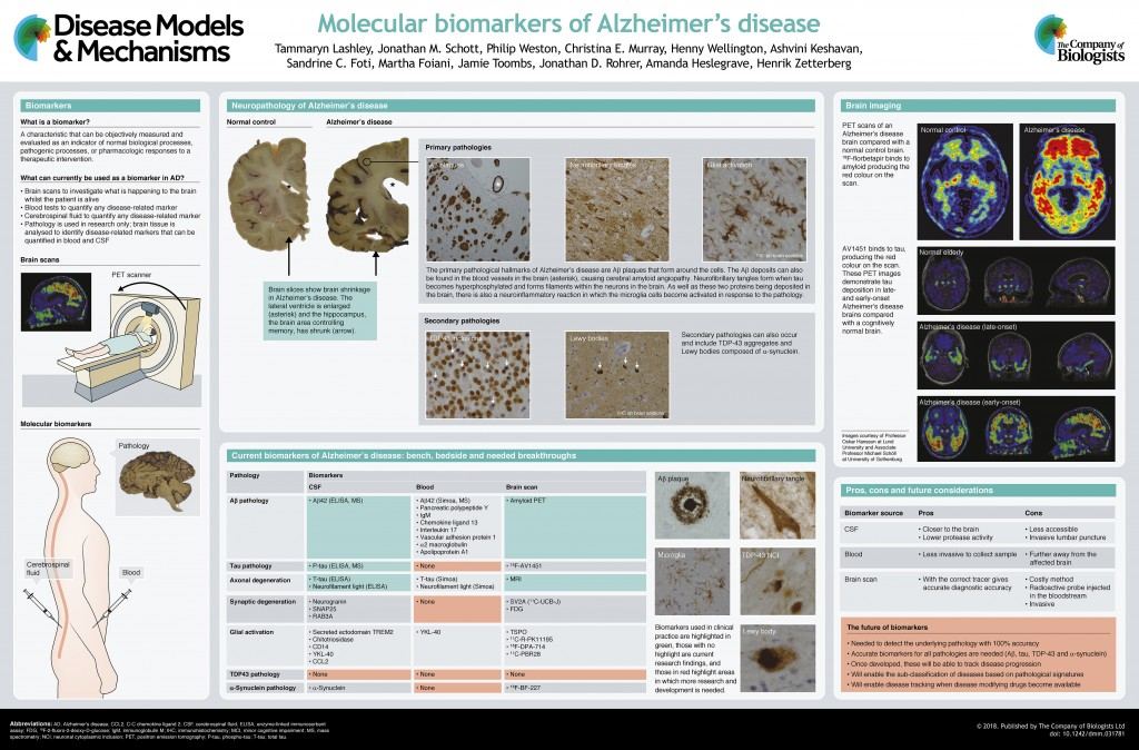 005 Abstract Alzheimers Research Paper Exceptional Alzheimer's Large