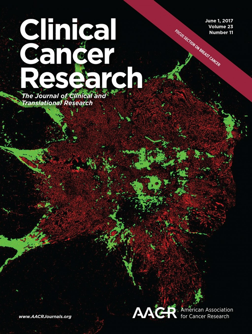 023 Cover Source Current Research Studies On Breast Cancer Wondrous Large